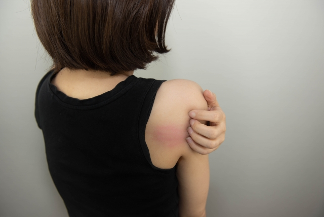 敏感肌のかゆみとその原因
